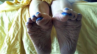 Mature feet, Sole