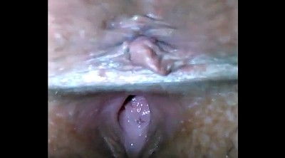 Injection, Granny creampie, Injections, Granny bbw