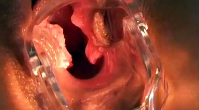 Gyno, Speculum, Dildo orgasm, After