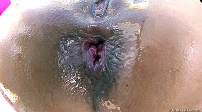 Prolapse, Gloves, Huge, Gape anal, Anal prolapse