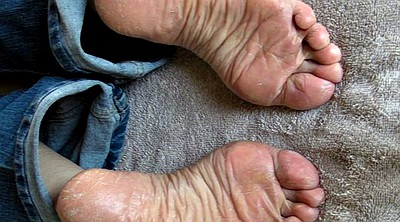 Sole, Sperm, Foot sole