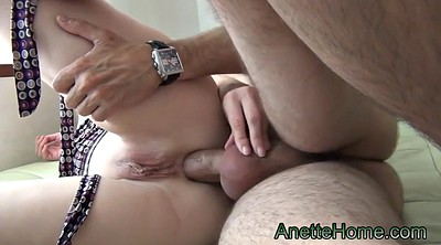Anal cam