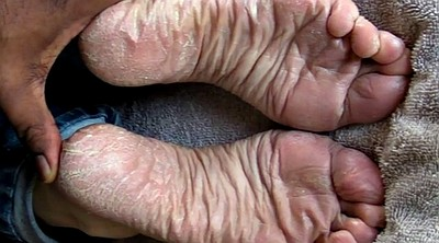 Sole, Sperm, Sole feet