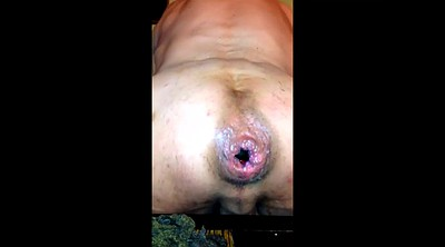 Compilation, Prolapse, Gay compilation, Can