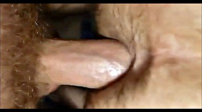 Anal creampie, Hairy anal