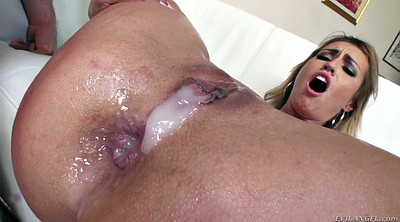 Prolapse, Vaginal