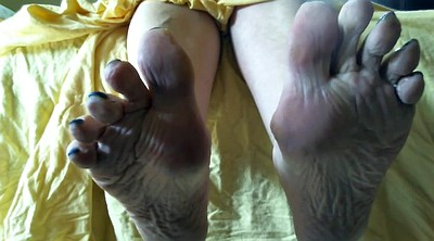 Sole, Mature foot, Mature feet