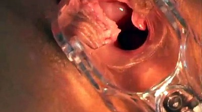 Gyno, Inside, Close up, Speculum, Gyno x
