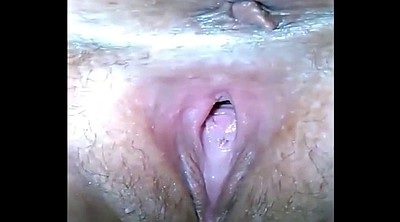 Injection, Inject, Injections, Gaping pussy, Pussy gaping, Bbw granny