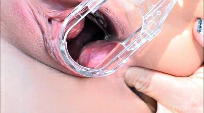 Gyno, Speculum, Pussy close up