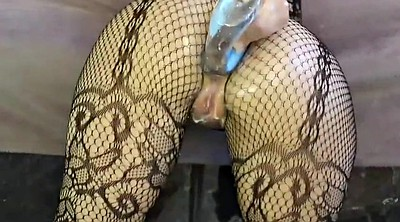 Prolapse, Anal fisting, Anal prolapse, Prolapse anal