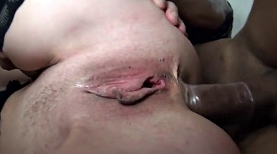Anal mature, French