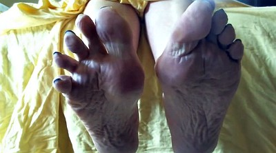 Sole, Mature feet