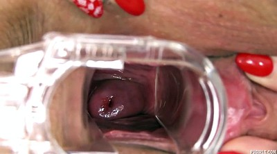 Gaping pussy, Gyno, Pussy close up