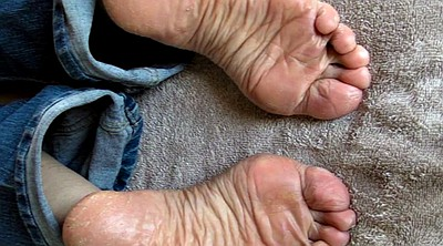 Sole, Soles feet, Dry