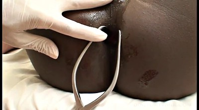 Doctor, Ebony anal, Blacked asian
